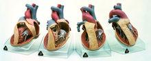 OS 7 Modellserie mit der Darstellung angeborener Herzfehler