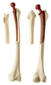 QS 71 Oberschenkelmodell mit S/P-Prothese